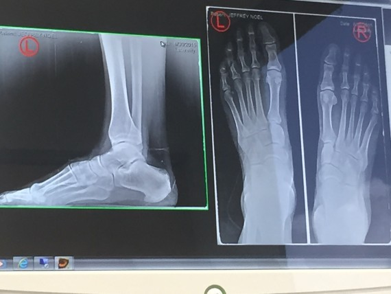 Foot X-rays