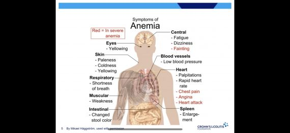 Anemia and IBD