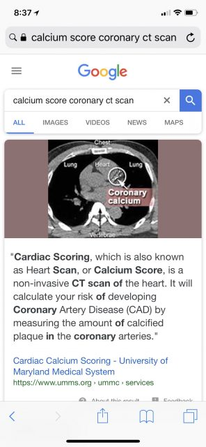 Calcium score Coronary CT scan