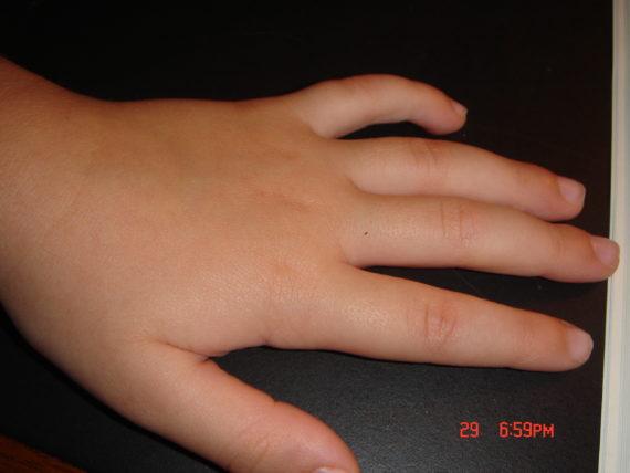 child's hand, swollen